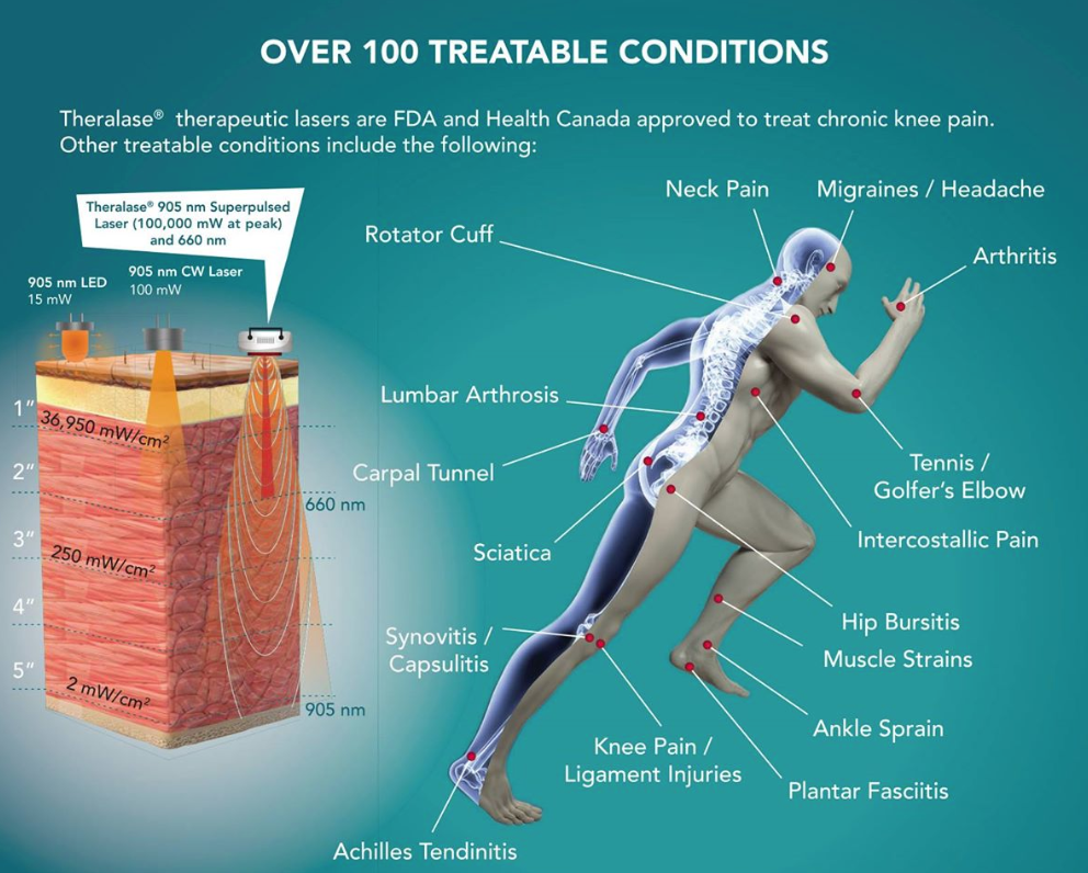 Laser Therapy Benefits